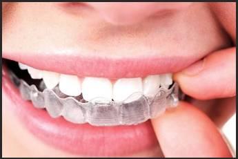 Diş Düzeltme